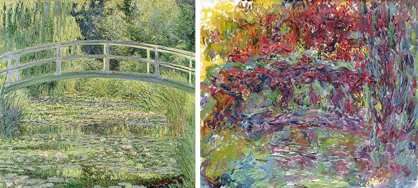 looking at how cataracts affected Monet's art